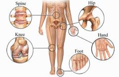 Osteoarthrits Locations