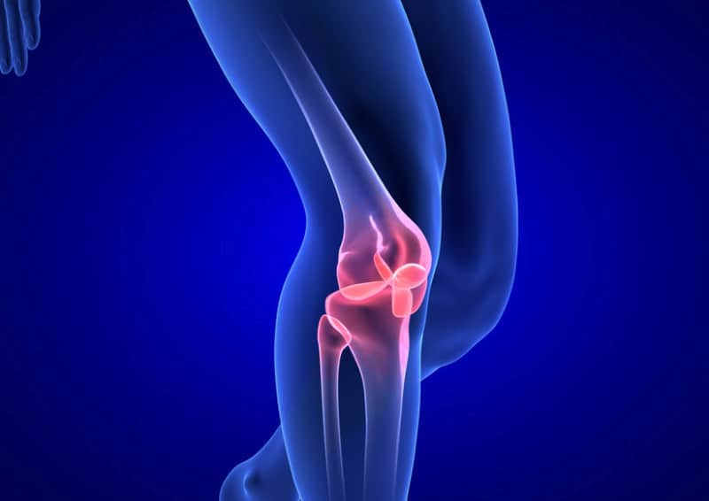 Image demonstrating arthritis in knee